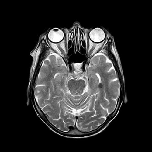 mri magnetic x ray