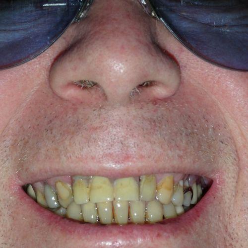 My Yellow Teeth