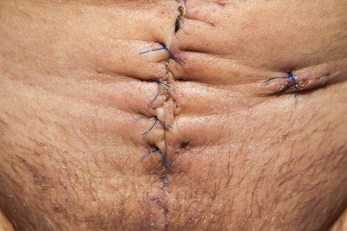 op operation abdomen surgery