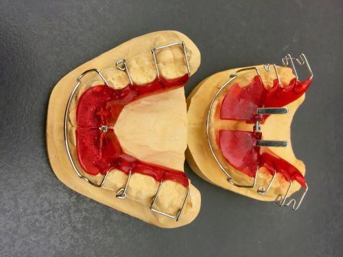 orthodontics dental braces plaster model