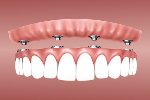 overdenture  implant  retained