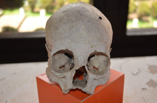 skull human remains death