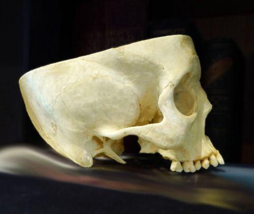 skull anatomy cranium