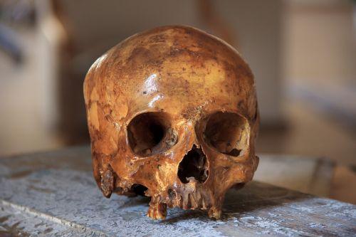 skull head bone