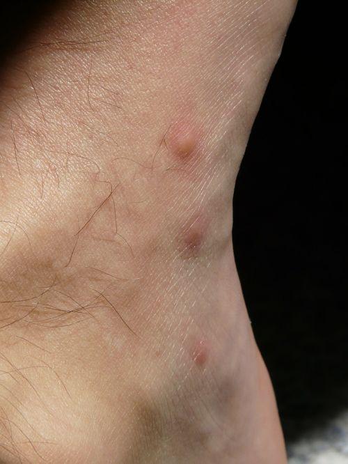 stitches schnakenstich itching