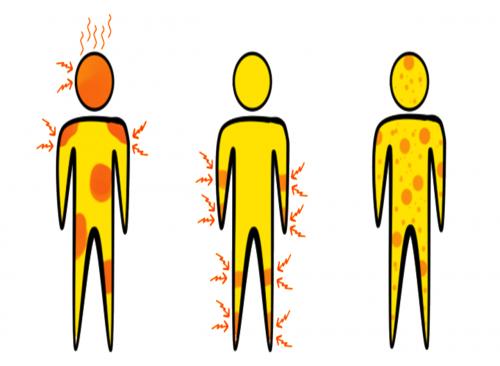 symptoms aedes aegypti disease