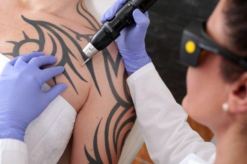 tattoo laser beauty practice