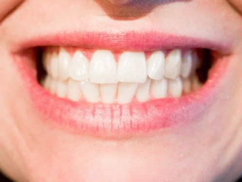 teeth dentist dental