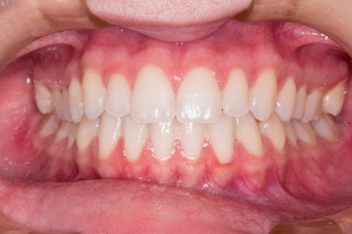 teeth smile dentist