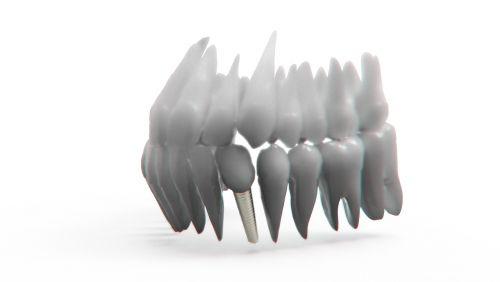 teeth jaw 3d model