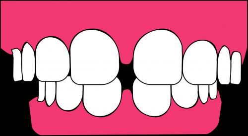 teeth dental gums