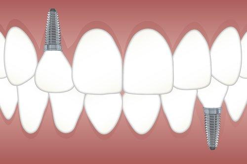 teeth  implant  orthodontics