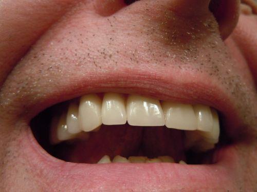 teeth dental tooth