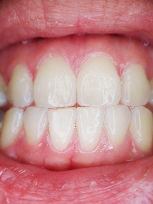 teeth mouth dental