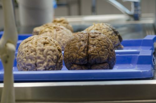 the brain medical science surgery