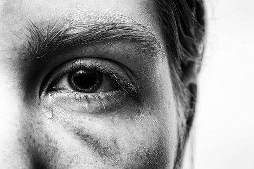 trauma  injured  tear