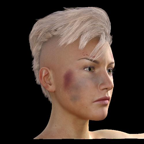 woman haematoma fight