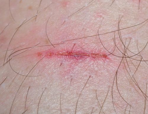 wound injury time heals all wounds