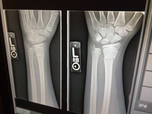 x-ray medical broken