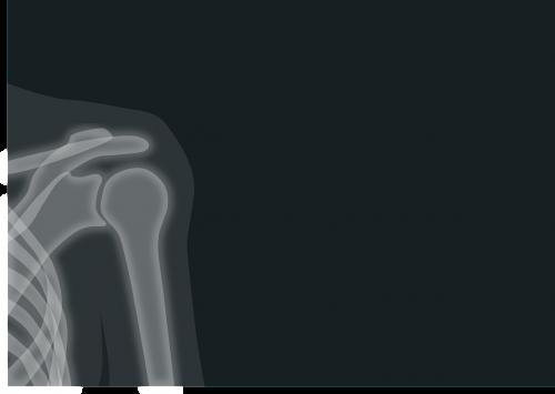 x ray,x ray image,radiacija,pečių,raumenys,medicinos,nemokama vektorinė grafika