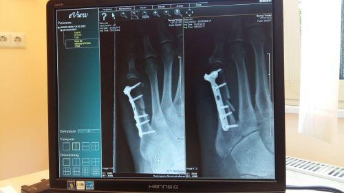 x ray,x ray image,klinika,medicinos,ligoninė,Išgyti,išnagrinėti,kaulas,kaulų lūžis,metatarsal,metatarsalinis lūžis,metalas,operacija,op,diagnozė,gijimas,Titanas