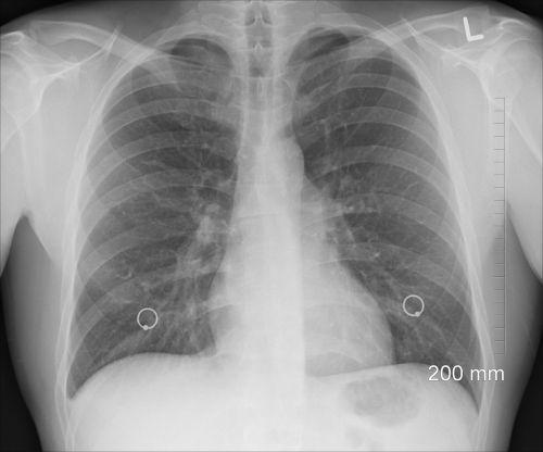diagnosis xray chest
