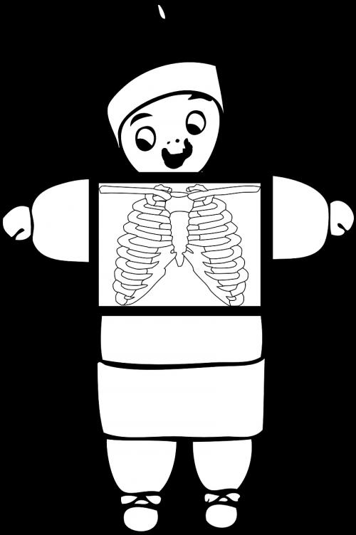 xray chest ribcage